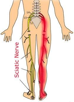 Medial diagram of the human body from the back. Nerves are drawn going from the lumbar spine down each leg, into the feet. One sides nerves are glowing red indicating sciatic pain from the sciatic nerve that runs down both backs of the legs.